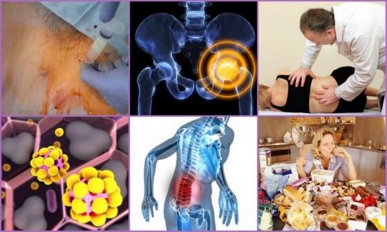 Синовит тазобедренного сустава: что это такое, симптомы и лечение, риски