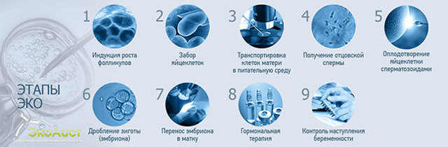 Процедура ЭКО: показания, противопоказания, подготовительный этап, необходимые обследования, сама процедура, важные моменты ЭКО.