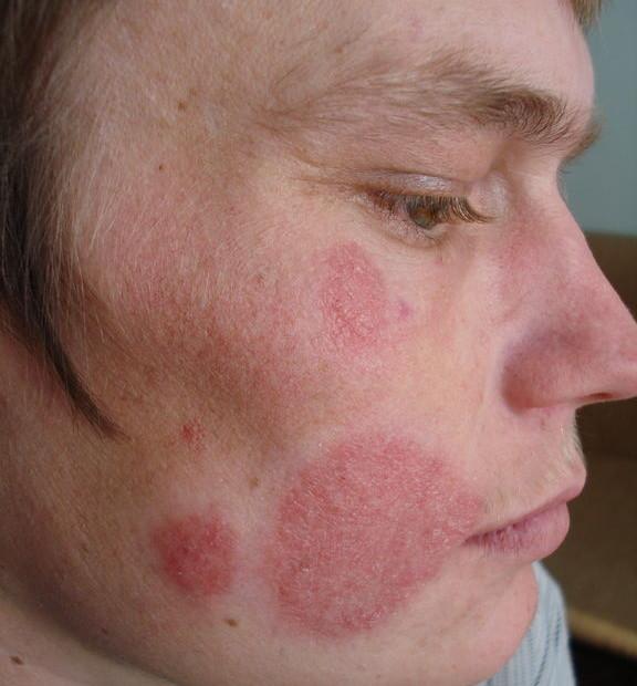 Стригущий лишай у человека: симптомы, лечение стригущего лишая в домашних условиях