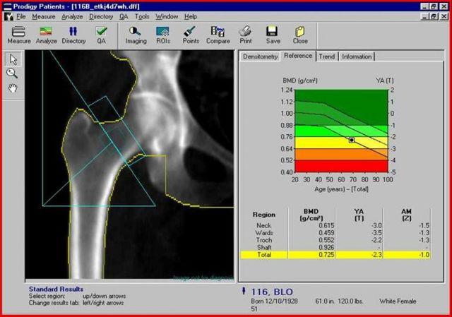 Что такое денситометрия позвоночника? Как проводят денситометрию костей и позвоночника