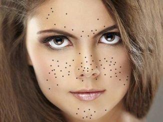 Комедоны на лице: виды, причины появления, советы, как избавиться от комедонов, и способы удаления комедонов в домашних условиях