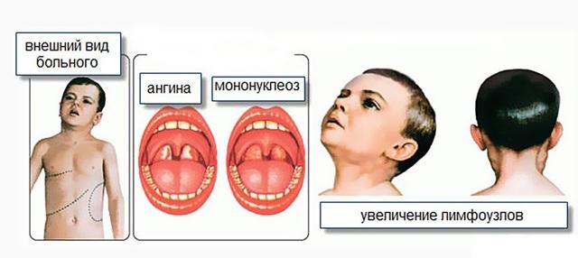 Вирус Эпштейна-Барр: симптоматика и лечение инфекционного мононуклеоза