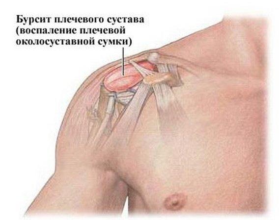 Болит плечо при поднятии руки вверх: что делать, к какому врачу идти