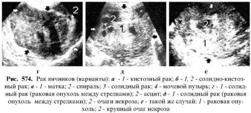 Обследования при нарушении функции яичников у женщин: анализы, УЗИ, диагностическое выскабливание матки