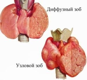 Как расшифровать УЗИ щитовидки при подозрении на диффузный зоб: какие нормы объема щитовидной железы?