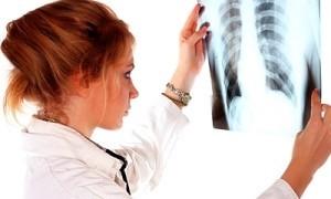 Рак легких: симптомы, основные методы диагностики, лечения, профилактики, прогноз