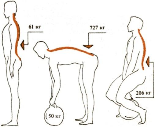 Паховая грыжа: причины возникновения, риски появления грыжи при занятиях тяжелой атлетикой
