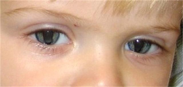 Анкилоблефарон у новорожденных, колобома верхнего века: симптомы, лечение