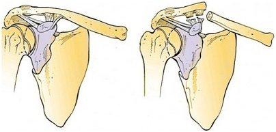 Перелом лопатки — лечение, иммобилизация и реабилитация после перелома лопатки