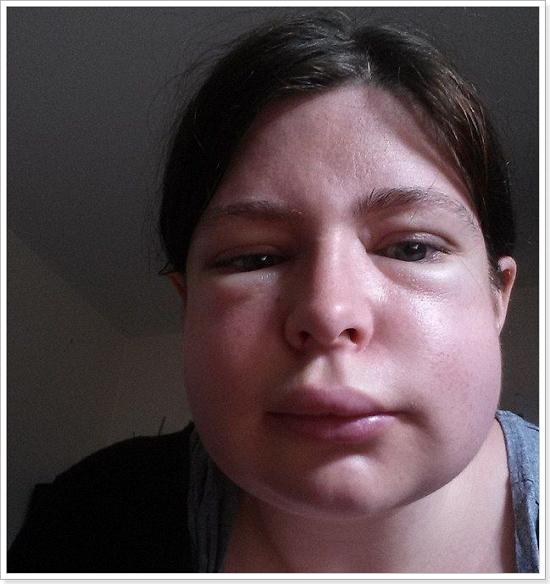 Пищевая аллергия: причины, продукты-аллергены, симптомы и признаки пищевой аллергии, диагностика, лечение и профилактика появления аллергических реакций