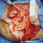 Болезнь Фурнье: клиника и лечение, диагностика, фото, операция