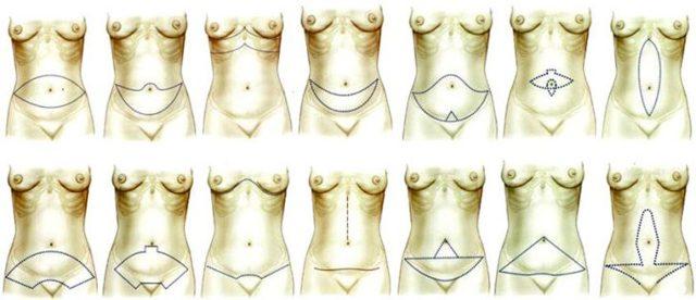 Дряблость кожи живота – проблема рожавших женщин.