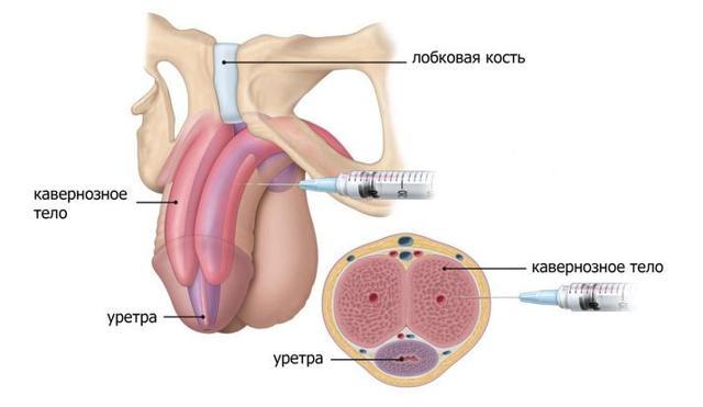 Как увеличить член гиалуроновой кислотой: показания, противопоказания, реабилитация