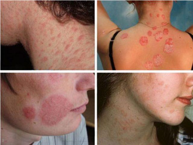 Розовый лишай у человека — симптомы, лечение, фото, диагностика и причины развития