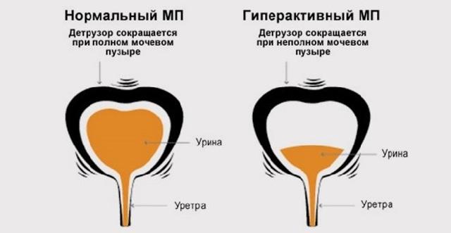 Травма мочевого пузыря: симптомы, диагностика, лечение у детей и взрослых