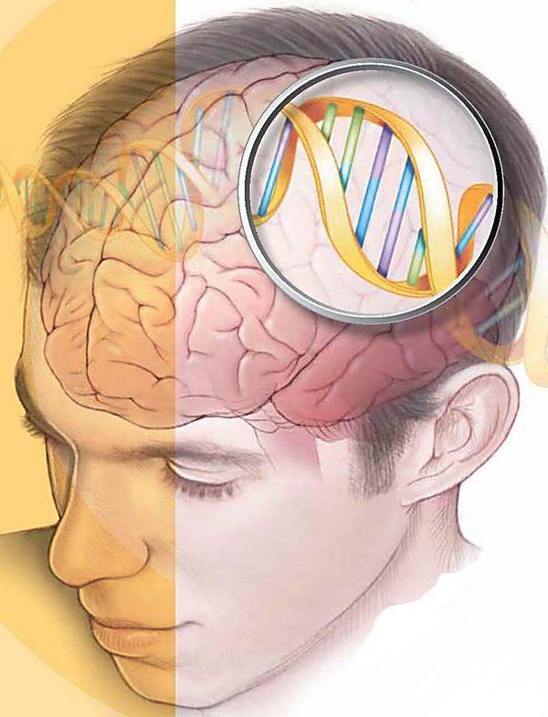 ВИЧ-деменция: что это, симптомы, лечение, чем характеризуется