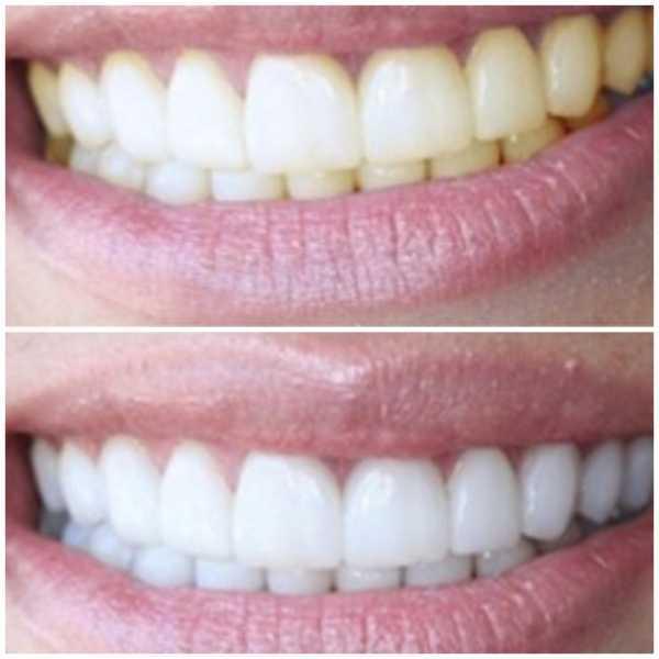 Лазерное отбеливание зубов - преимущества и недостатки лазерного отбеливания зубов