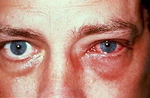 Как лечить инфекционный конъюнктивит