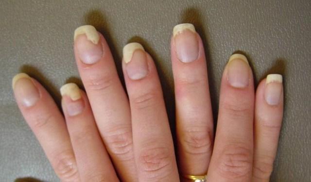 Лечение псориаз на руках - фото симптомы виды псориаза на руках