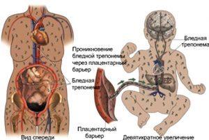 Сифилис при беременности: последствия для плода, опасность, лечение, роды