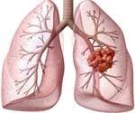 Первые признаки рака легкого: стадии рака легких, диагностика и факторы, способствующие развитию рака легких