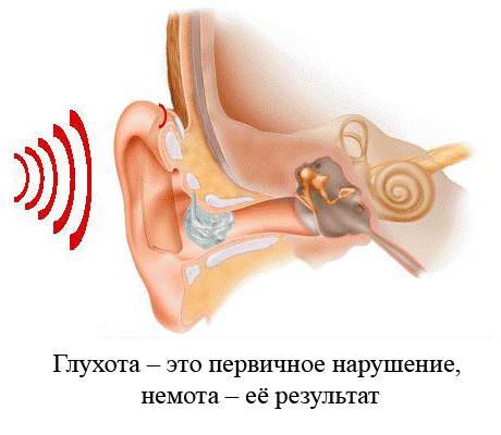 Сурдомутизм, глухонемота: что это такое, симптомы, передается ли по наследству