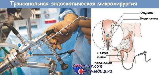 Анальный полип: симптомы, лечение полипа аноректальной зоны