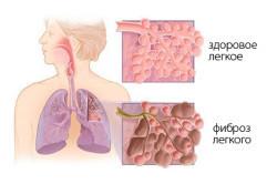 Фиброз легких: что это такое и как лечить, симптомы фиброза легких и лечение
