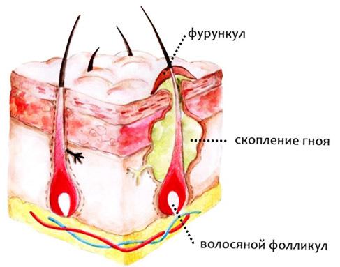 Фурункул: симптомы заболевания, лечение, осложнения фурункулёза.