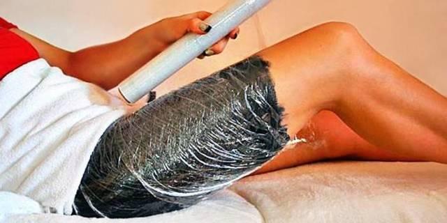 Почему появляются растяжки на коже: лечение растяжек при беременности, способы удаления стрий