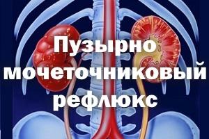 Пузырно-мочеточниковый рефлюкс: симптомы, причины и методы лечения у детей и взрослых