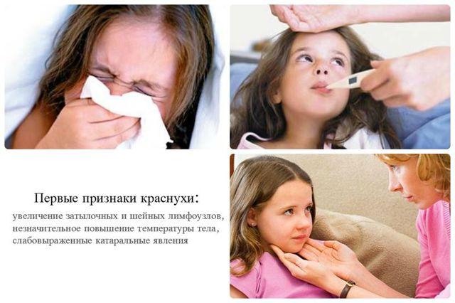 Краснуха у детей: возбудитель, пути передачи, симптомы краснухи у детей, лечение и профилактика краснухи.
