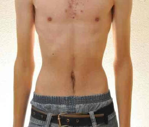 Почему я резко похудела: причины резкого похудения и падения волос
