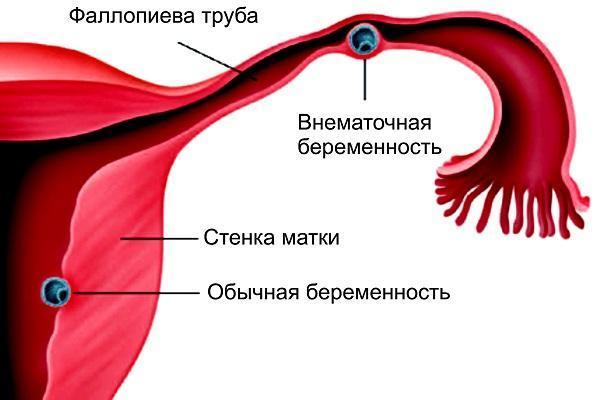 Кровянистые выделения до родов, кровотечение в третьем триместре беременности: что это значит