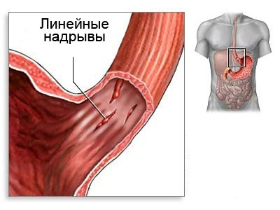 Разрыв пищевода: причины, симптомы, диагностика, лечение, последствия