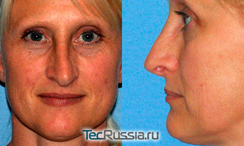 Большой нос – пластика носа, операция, осложнения после ринопластики, подготовка