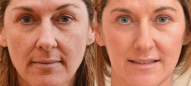 Процедура плазмолифтинга: эффект, противопоказания к prp-терапии в косметологии
