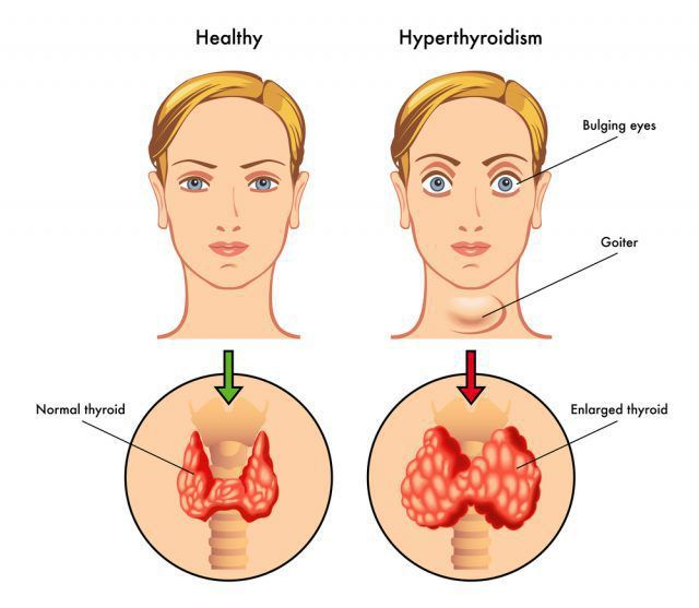 Диффузный токсический зоб: симптомы, причины, диагностика тиреотоксикоза и современные методы лечения болезни Базедова.