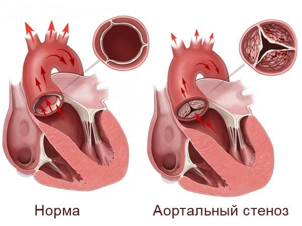 Аортальный стеноз — симптомы, лечение, диагностика, операция при стенозе аорты