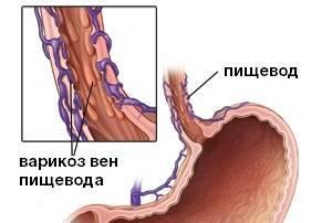 Варикозное расширение вен пищевода: степени, симптомы, лечение