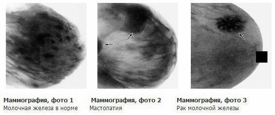 Инвазивная протоковая карцинома молочной железы: симптомы, лечение, прогноз