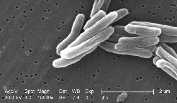 Анализ на Хеликобактер Пилори: какие тесты и анализы крови на Хеликобактер Пилори позволяют выявить бактерии