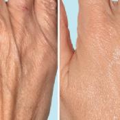 Мезотерапия лица, тела, мезотерапия для волос: применение мезотерапии для похудения и устранения морщин