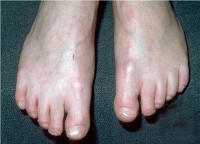 Акрогерия семейная, синдром Готтрона: мужской тип, частота встречаемости, критерии