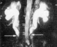 Забрюшиный фиброз, болезнь Ормонда: симптомы, лечение, кто лечит, где лечить