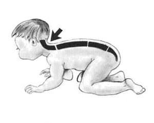 Лордоз у ребенка: шейный и поясничный лордозы - диагностика, меры профилактики и лечение