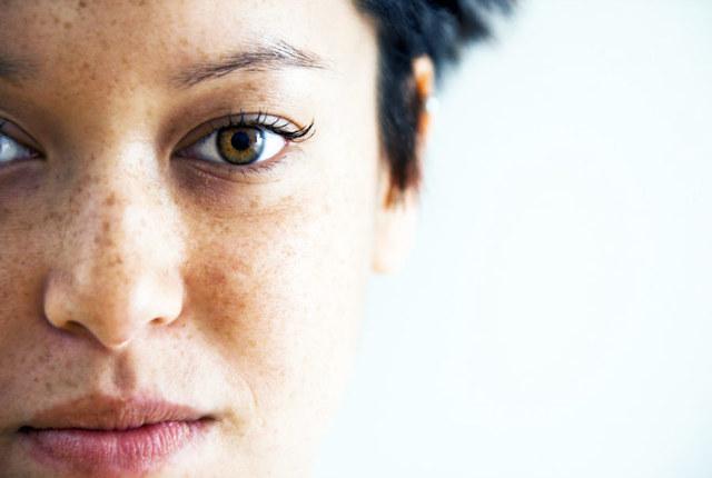 Пигментные пятна на лице: причины и лечение, как избавиться от пигментных пятен на лице вы домашних условиях