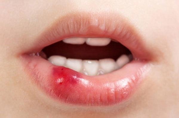 Что делать, если ребенок сломал зуб, разбил губу, сломал челюсть, обжог рот горячим