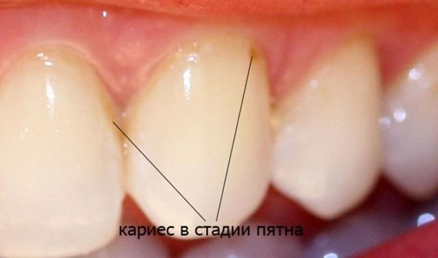 Кариес: виды, симптомы, способы лечения кариеса, пломбирование зубов при кариесе, профилактика кариеса