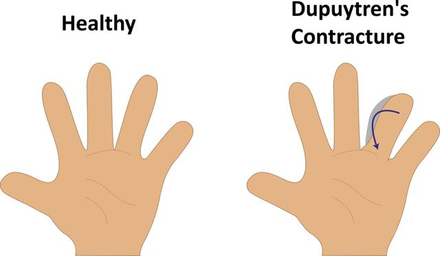Контрактура Дюпюитрена: симптомы, лечение без операции и оперативное